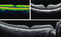 Ocular Coherence Tomography